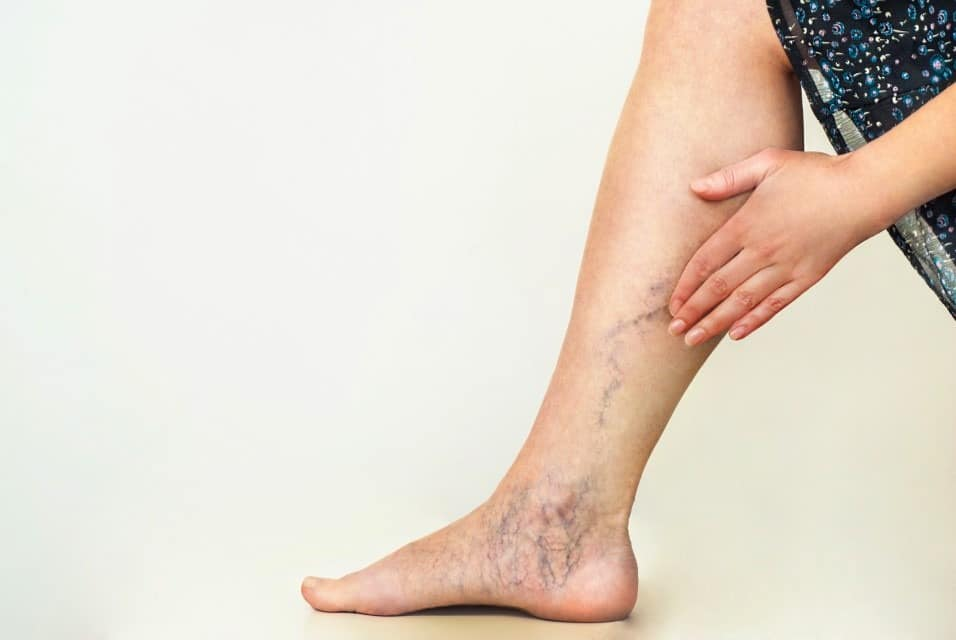 Occupations That Increase Your Risk of Varicose Veins